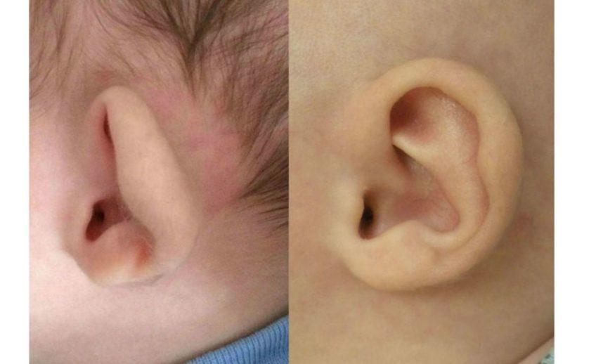 bebek kulak şekil bozkluğu